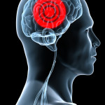 Brain Inflammation and Autism