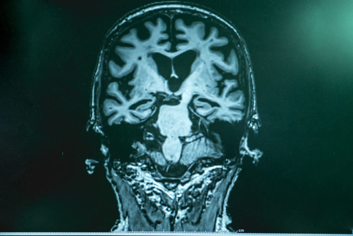 Alzheimers-insert